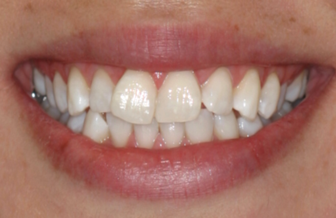 Tooth Whitening Annapolis